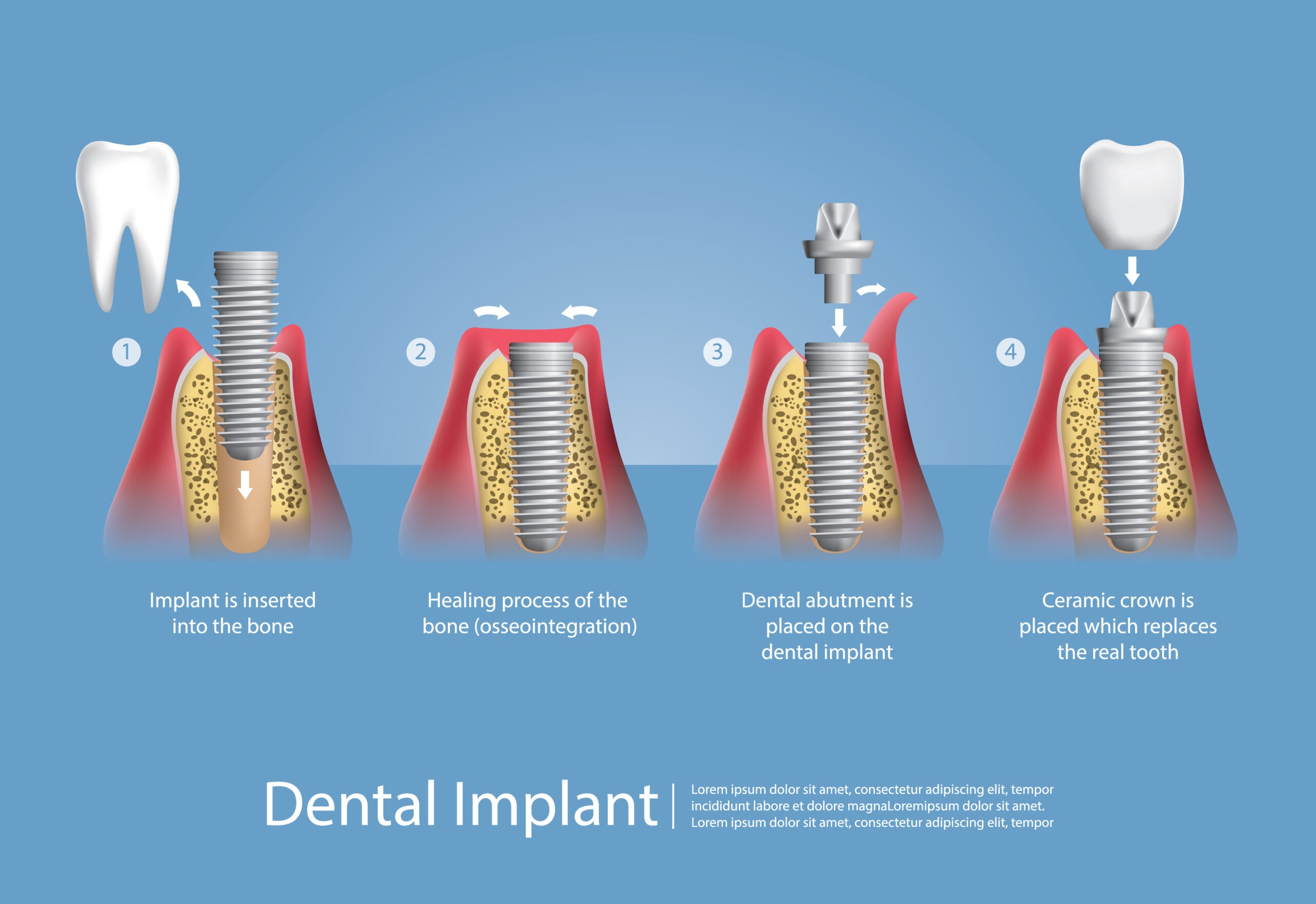 , Dental Implants – the effective way to replace missing teeth